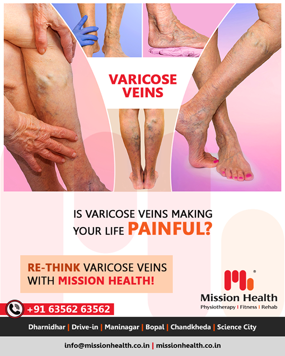 Varicose veins can cause a myriad of problems, like mild discomfort (as in Spider Veins) to severe painful conditions like Venous Ulcers. Other symptoms like swelling, heaviness, fatigue, restlessness, itching, discoloration in legs are also often seen. It is more prevalent in females than males but can develop in any person who has to sit and/or stand for prolonged hours.  Mission Health Vein Clinic is a breakthrough in the non-surgical treatment of Varicose Veins! Call +916356263562 www.missionhealth.co.in   #varicoseveins #spiderveins #sclerotherapy #veintreatment #veins #spiderveinremoval #spiderveintreatment #veinremoval #vascular #varicoseveintreatment #veindoctor #varices #veinclinic #varicose #healthylegs #health #legveins #varicoseveinremoval #varicosevein #endovenous #legs #MissionHealth #MissionHealthIndia #MovementIsLife