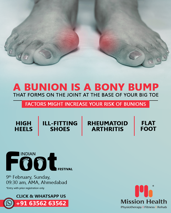 Wearing tight, narrow shoes might cause bunions or make them worse. Bunions can also develop as a result of the shape of your foot, a foot deformity or a medical condition, such as arthritis.  Call: +916356263562 Visit: www.missionhealth.co.in  #IndianFootFestival #ComingSoon #FootClinic #footpain #footcare #foothealth #heelpain #anklepain #flatfeet #painrelief #healthyfeet #happyfeet #MissionHealth #MissionHealthIndia #MovementIsLife