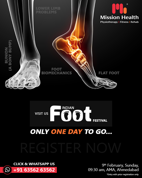 Flat FOOT l Foot Biomechanics l Lower Limb Problems l  Bunion (A Bony Bump) & other foot problems  Seats are booked for tomorrow's session. We wholeheartedly welcome all the registered participants for one of its kind experience ever...  Only ONE Day to GO…          Call: +916356263562 Visit: www.missionhealth.co.in  #IndianFootFestival #ComingSoon #FootClinic #footpain #footcare #foothealth #heelpain #anklepain #flatfeet #painrelief #healthyfeet #happyfeet #MissionHealth #MissionHealthIndia #MovementIsLife
