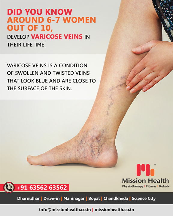 Mission Health offers a painless and non-surgical approach to treating Varicose Veins with   -> Non-Surgical Pain & Circulation enhancing Technologies – A revolution in non-surgical management of Varicose Veins  -> Varicose Veins Exercise Protocol  -> Prevention Strategies & Lifestyle Modifications.   This holistic Physiotherapy Programme has shown remarkable results in 90% cases of Varicose Veins, to the extent of healing the painful Venous Ulcers without medicines and surgery!  Call +916356263562 www.missionhealth.co.in  #varicoseveins #spiderveins #veintreatment #veins #spiderveintreatment #veinremoval #vascularphysiotherapy #varicoseveintreatment #veindoctor #varices #veinclinic #varicose #healthylegs #health #legveins  #MissionHealth #MissionHealthIndia #MovementIsLife