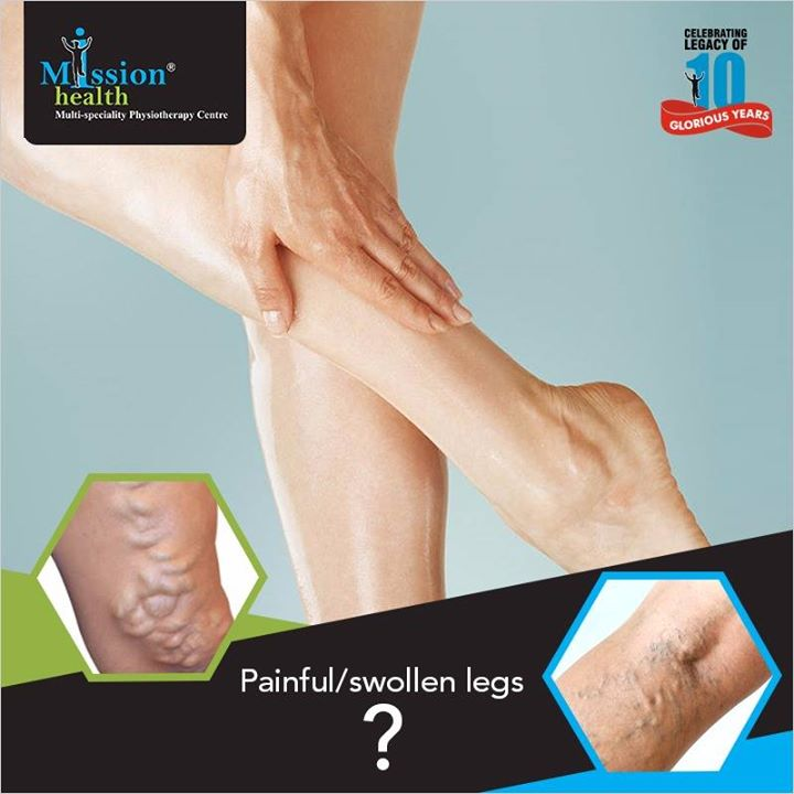 Are you suffering from pain and swelling in your legs?? If yes, you may be having Varicose Veins! Varicose Veins are quite common in a population, especially in females. They usually develop it during or after pregnancy. It develops as a result of poorly functioning vein valves & can cause a wide array of problems ranging from mild discomfort(Spider Veins) to severe condition like Venous Ulcers. Even males though suffer less compared to females are no exempt. Mission Health Vein Clinic is a breakthrough in the Non-Surgical Treatment of Varicose Veins. For more details Visit us - www.missionhealth.co.in Call us at - 7622811811 / 8530720720 India's first Non Surgical Vein Clinic  #MissionHealth #Ahmedabad #Mumbai #India #VeinClinic
