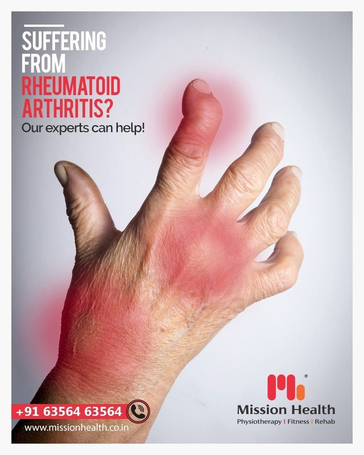 Rheumatoid Arthritis is a Chronic Inflammatory condition causing pain and deformities in peripheral joints like elbow, wrist, fingers, knee and ankle.  Known to be crippling condition, taking Physiotherapy sessions in early stage of disease can reduce pain and limit deformity of joints remarkably! At Mission Health we treat patients with advanced non surgical pain technologies and exercise strategies to help prevent deformity and enhance function.  Don't wait till your joints are deformed. Book your appointment now!  Call +916356263562 www.missionhealth.co.in  #rheumatic #rehab #arthritis #chronicpain #rheumatology #autoimmunedisease #autoimmune #pain #nonsurgicaltechnologies #rheumatoidarthritis #rheumaticdisease #chronicillness #MissionHealth #MissionHealthIndia #MovementIsLife