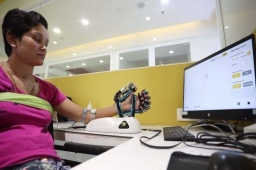 Robotics in Neuro Rehabilitation reduces the recovery time to almost half.  Mrs. Rajvi Soni re-learning hand movements post-stroke with